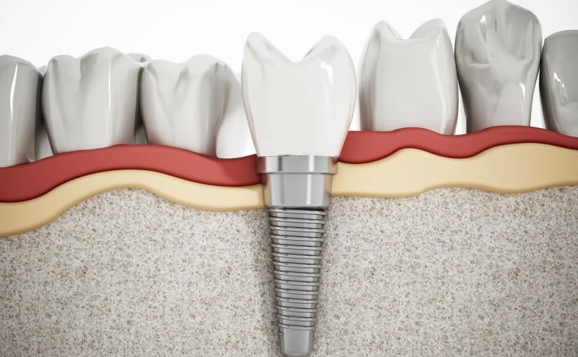 Implanty stomatologiczne za i przeciw