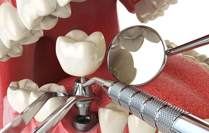 Implanty stomatologiczne  – stomatologia estetyczna