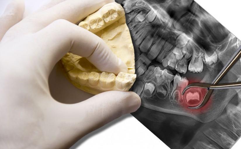 Usunięcie korzeni zębów