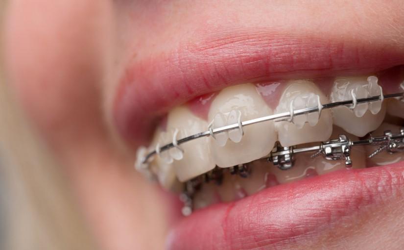 Ligatury ortodontyczne