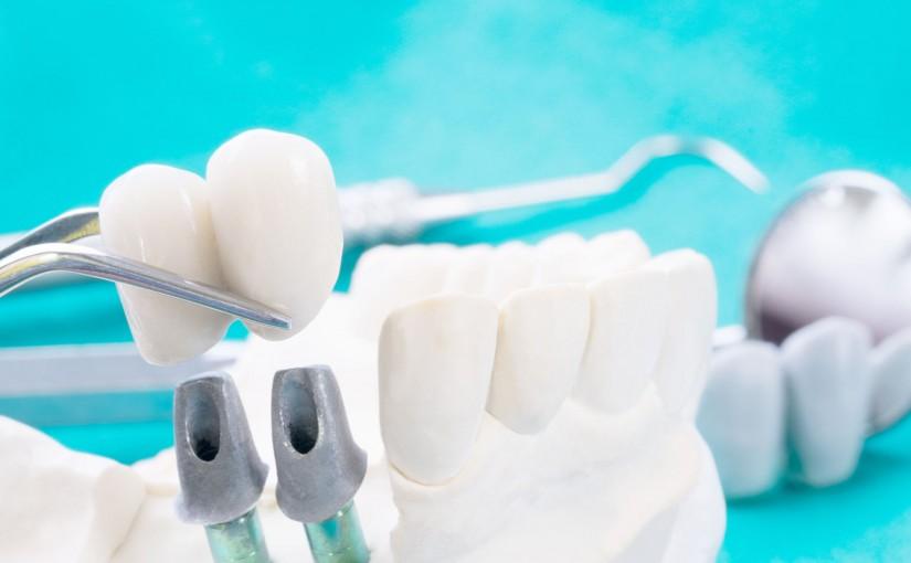 Co warto wiedziećo implantach stomatologicznych?