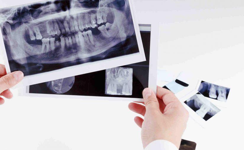 Radiologia w stomatologii