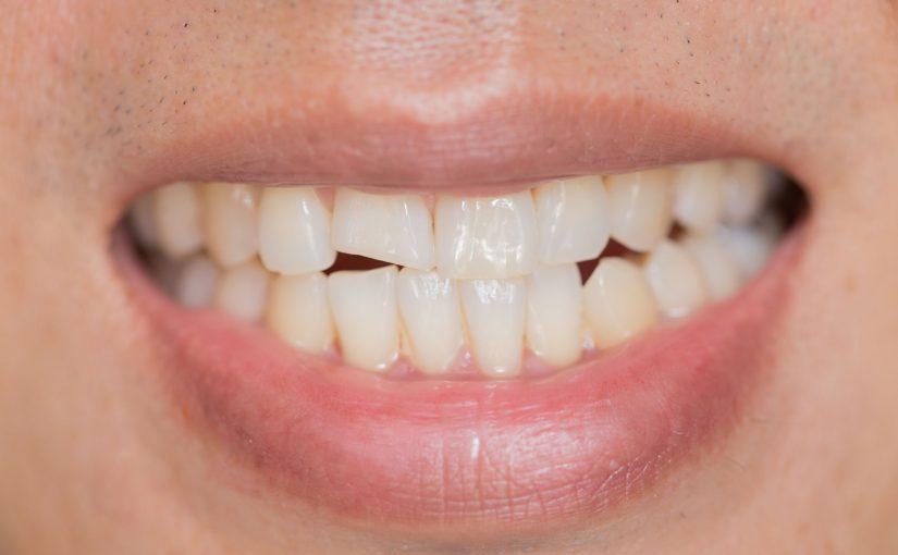 Ukruszony ząb – Kiedy do stomatologa?